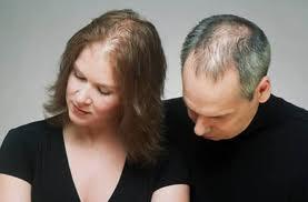 Dökülen Saçları yeniden çıkarmak - Saçın Yeniden Çıksın