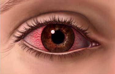 Göz Hastalıklarına Manevi Reçete